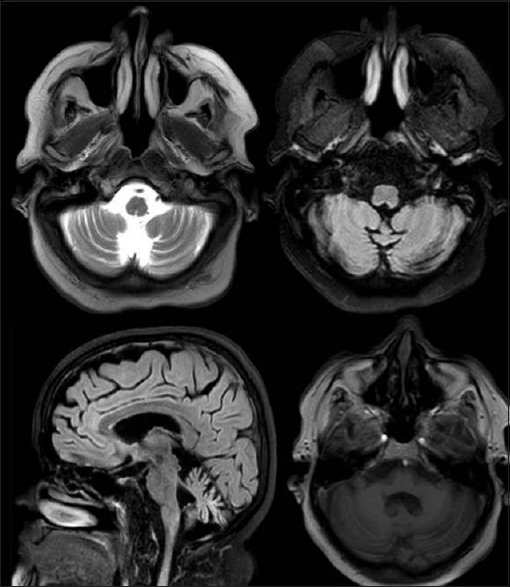 Figure 1: Magnetic resonance imaging at presentation showing clear enhancement of the folia of the cerebellum with diffuse cerebellar atrophy