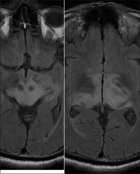 Figure 2: Wernicke encephalopathy. T2 fluid-attenuated inversion recovery axial image reveals extensive increased signal intensity in thalami around the third ventricle including pulvinar and capsuloganglionic regions