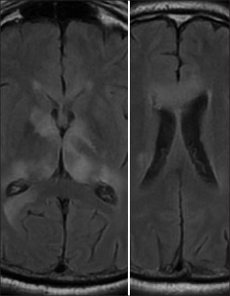 Figure 3: Wernicke encephalopathy. T2 fluid-attenuated inversion recovery axial image reveals extensive increased signal intensity in thalami around the third ventricle including pulvinar, capsuloganglionic regions with mass like lesions in the genu of corpus callosum mimicking diffuse glioma with gliomatosis cerebri pattern of spread. Involvement of genu with mass-like lesions is not previously described in Wernicke encephalopathy
