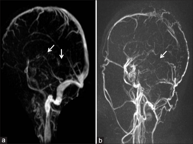 Figure 3: Magnetic resonance venography time-of-flight images (Case 1) and magnetic resonance venography contrast images (Case 2) showing nonvisualization of the internal cerebral vein, basal veins, and great vein of Rosenthal (arrows) of patients in Case 1 (a) and Case 2 (b)