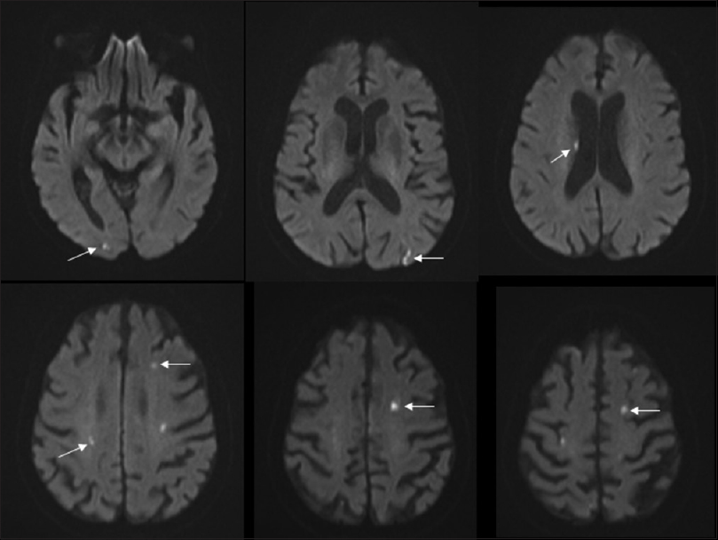 Figure 2: Diffusion-weighted imaging sequences recorded at the second admission (5 months later) showing patchy multifocal diffusion restriction in the bilateral hemispheric white matter (arrows)