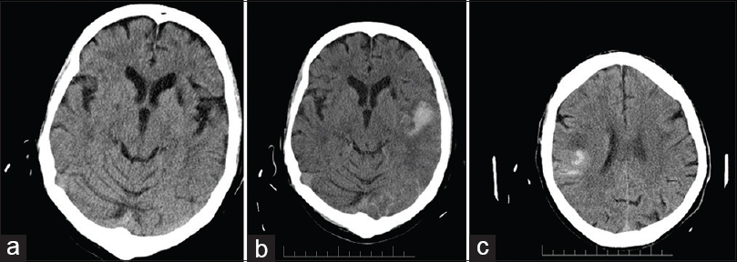 Figure 1: (a) Brain computed tomography before thrombolysis. Old infarction in the left basal ganglia. The patient fulfilled the criteria of SITS-MOST for intravenous recombinant tissue plasminogen activator. (b) Brain computed tomography, carried out 24 h after thrombolysis with hemorrhage type 2 in the area of infarction in the left posterior MCA (middle cerebral artery), with clinical worsening. (c) Brain computed tomography after thrombolysis small hemorrhagic transformation (HI-2) without clinical worsening