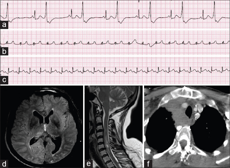 Figure 2: Concomitant Illnesses in Crisis. (a) 49–year-old with ventricular bigeminy, (b) 62–year- old with junctional tachycardia aggravated by pyridostigmine, (c) 57-year-old with diffuse ST elevation and ECHO showing pericarditis, (d) 64-year-old with invasive thymoma and encephalopathy, MRI showing FLAIR sulcal changes in insular cortex and parieto-occipital lobes, (e) 23-year-old with MRI showing cervical cord hyperintensity, (f) 33-year-old with dyspnea and features of thymoma recurrence with superior vena cava syndrome and airway infiltration