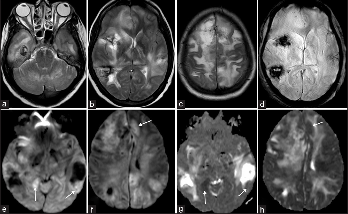 Figure 4: MR brain scan (February 21, 2017). Axial T2-WI (a-c) show hyperintense lesions in bilateral cerebellar and temporal lobe white matter (a), bilateral periatrial, right frontal and peri-insular white matter, both thalami and posterior limb of internal capsules (b) and subcortical white matter of both frontal and parietal lobes (c). SWI (d) show multiple hypointense foci within T2-hyperintense lesions suggesting hemorrhages. Axial DWI maps (e and f) and ADC maps (g and h) show multiple nodules of diffusion restriction, bright on DWI maps (arrowheads in e and f) and dark on ADC maps (arrowheads in g and h)