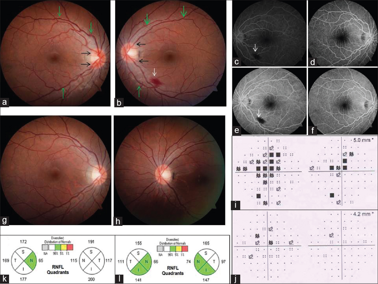 Figure 1: (a, b) Fundus of both eyes (BE) showing mild blurring of disc margins (black arrow) and tortuosity of retinal vessels posteriorly (green arrow). (c-f) Fundus fluorescein angiography of BE essentially normal except a small area of block fluorescence in left (white arrow). (g, h) Mild temporal disc pallor with well-defined margins in BE, 3 months after stopping medication. Centroceal scotoma in BE visual fields (i) in acute stage of TON, which resolved in BE (j) after 3 months. OCT of retinal nerve fiber layers showing thickening in BE (k) in acute stage of TON, which reduced (l) after 3 months