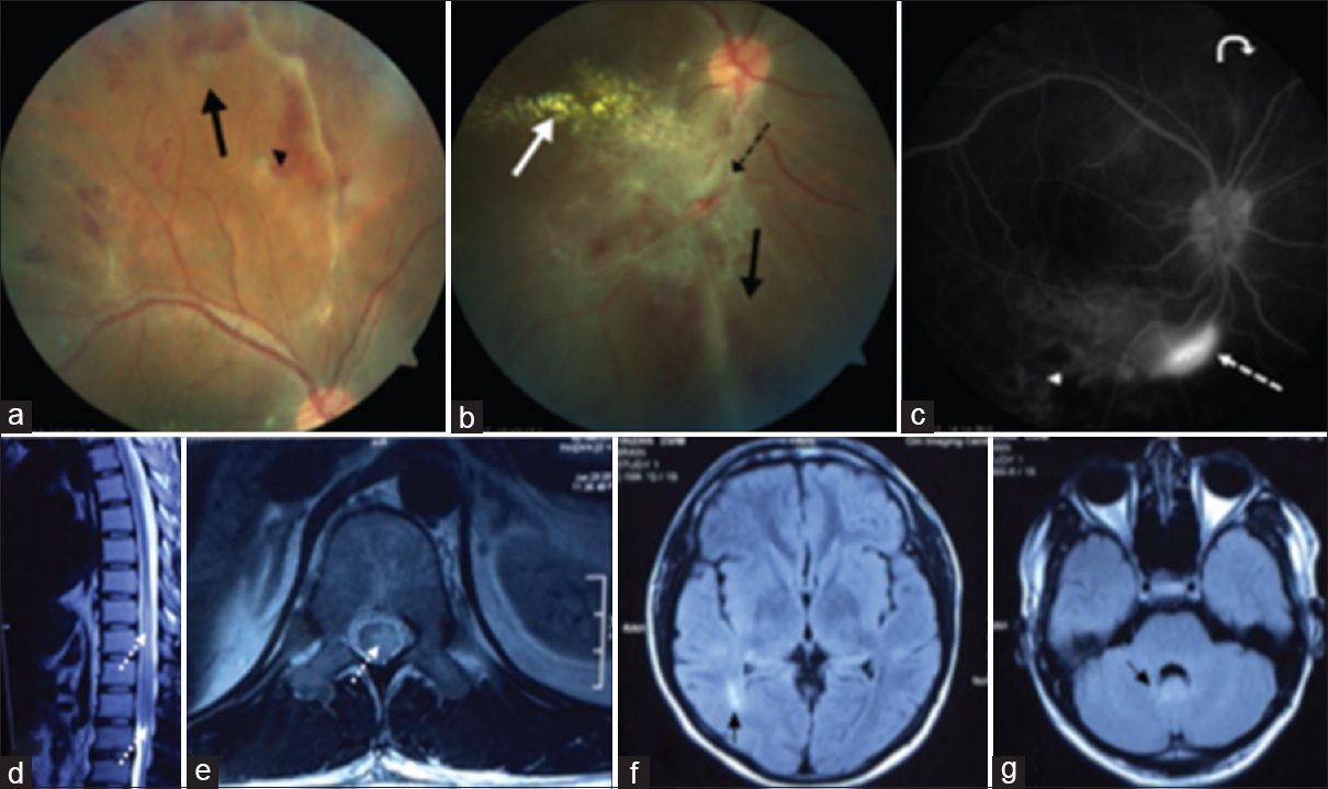 Figure 1: Panel (a), (b) Indirect ophthalmoscopy showing perivascular hemorrhages (<i>black arrow head</i>), perivascular sheathing (<i>dashed black arrow</i>), Hard exudates in the macular area (<i>white arrow</i>) and decreased perfusion in the superior and inferotemporal quadrant (<i>black arrow</i>); Panel c- Flourescein angiography demonstrating abrupt cut off of vessels (<i>curved white arrow</i>), area of retinal ischemia (<i>white arrow head</i>) and dye leakage (<i>dashed white arrow</i>); Panel (d), (e)- MRI dorsolumbar spine (T2 Weighted image) showing two long segment cord hyperintensity extending from D9-D12 and involving conus (<i>dashed white arrows</i>), cross section showing more than 2/3rd cord involvement; Panel (f, g) – MRI Brain (T2 Fluid attenuated inversion recovery image) depicting periventricular hyperintensity (f) and periependymal hyperintensity around the fourth ventricle (g) (<i>black arrow</i>)